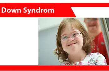 Sindroma-Down-definisi-karakteristik-jenis-penyebab-faktor